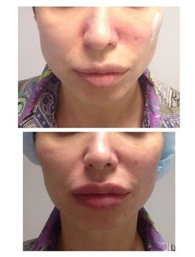 Фото до и после процедуры контурной пластики скул - 5