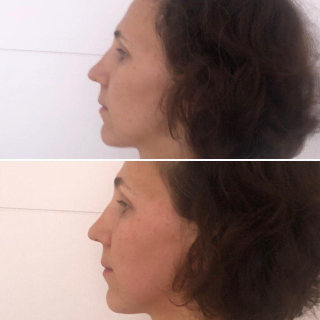 Фото до и после массажа лица - 2