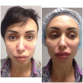 Фото до и после процедуры контурной пластики скул - 6