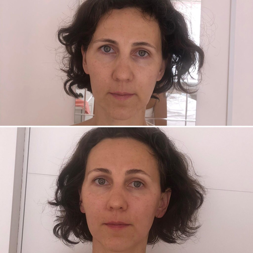 Фото до и после массажа лица - 3