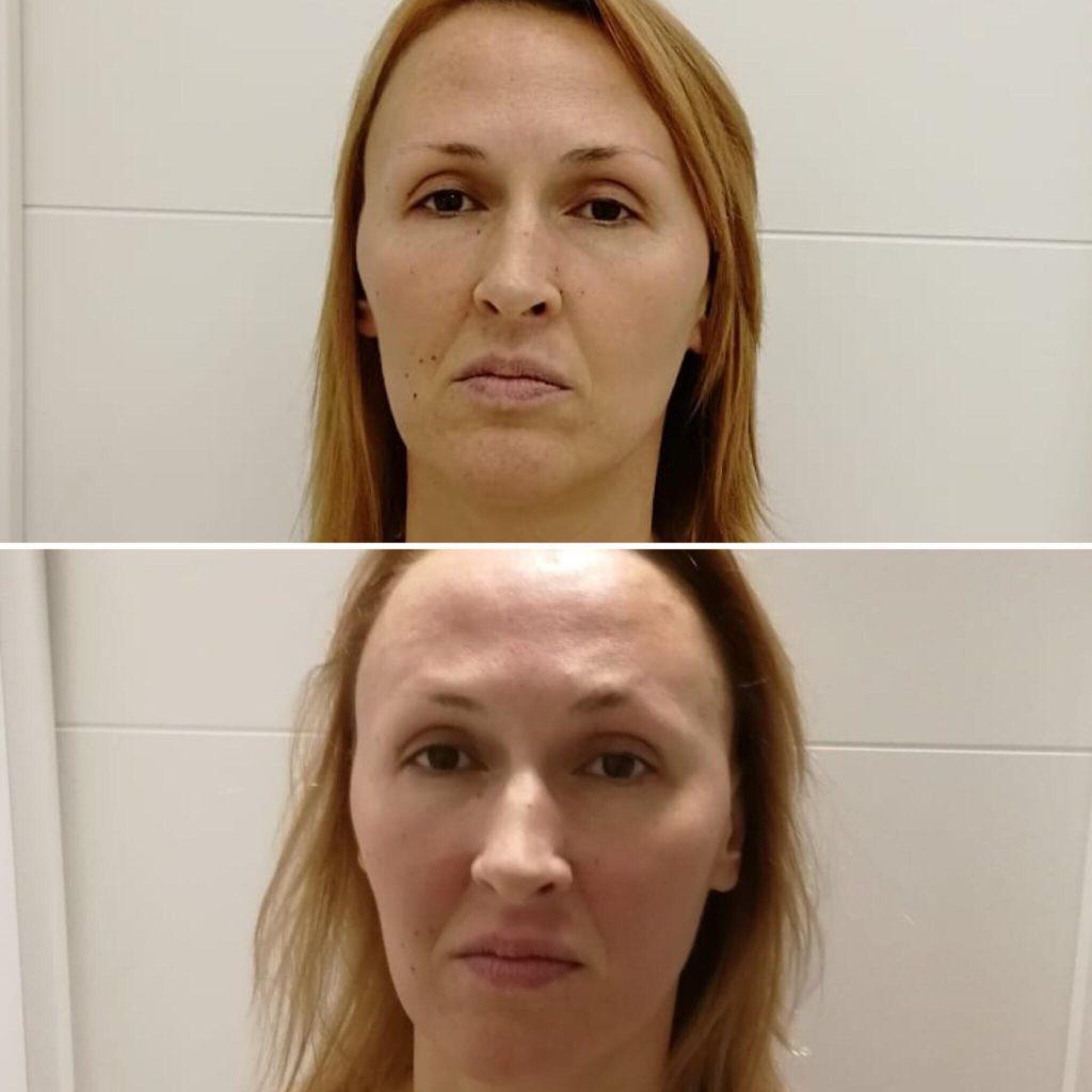 Фото до и после массажа лица - 4