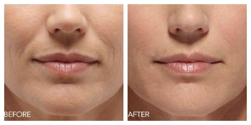 Фото до и после коррекции поверхностных складок с помощью препарата Belotero soft