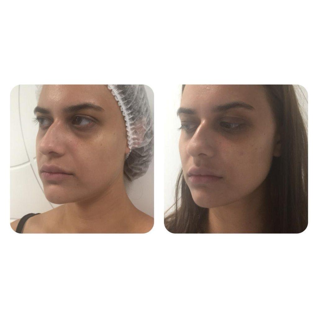 Фото до и после процедуры контурной пластики скул - 3