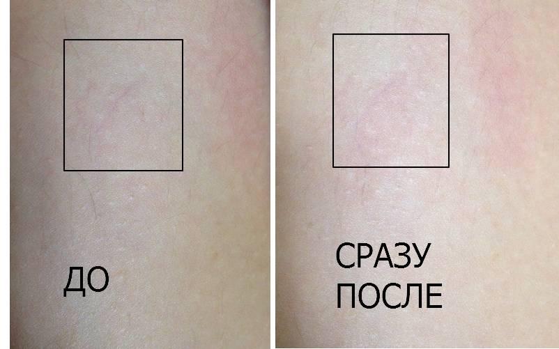 Фото до и после лечения купероза
