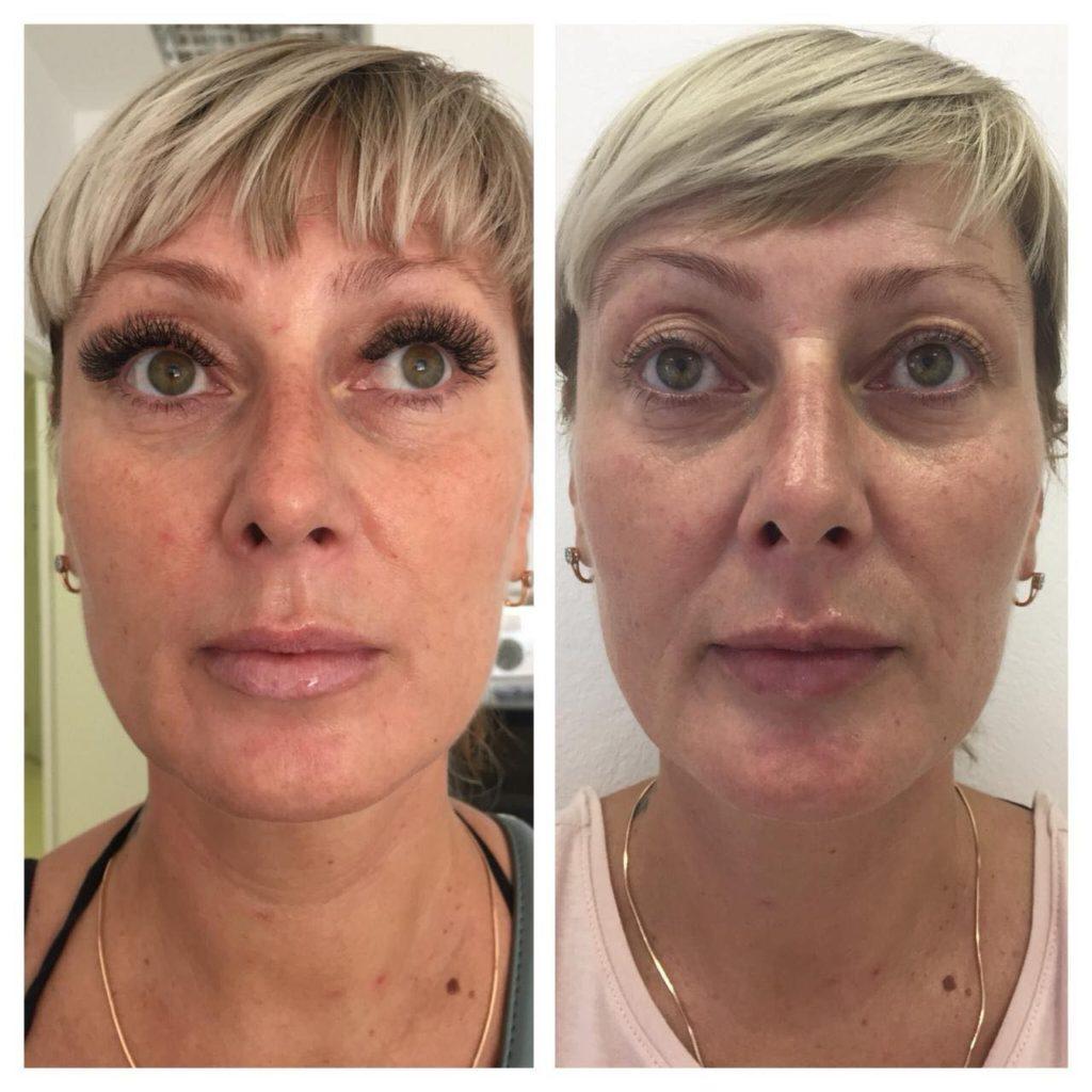 Фото до и после процедуры контурной пластики скул - 4