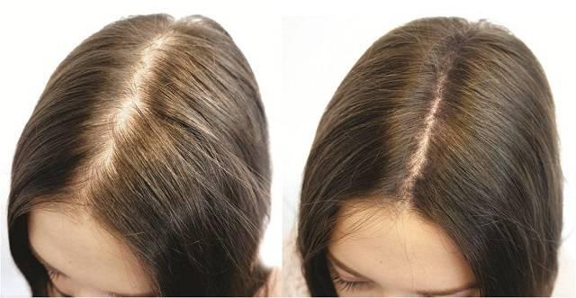 Фото до и после лечения алопеции