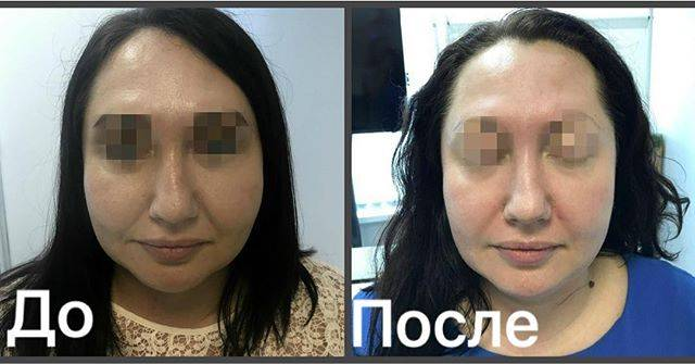 Фото до и после массажа лица - 5