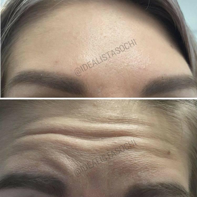 Фото до и после укола ботокса - 4