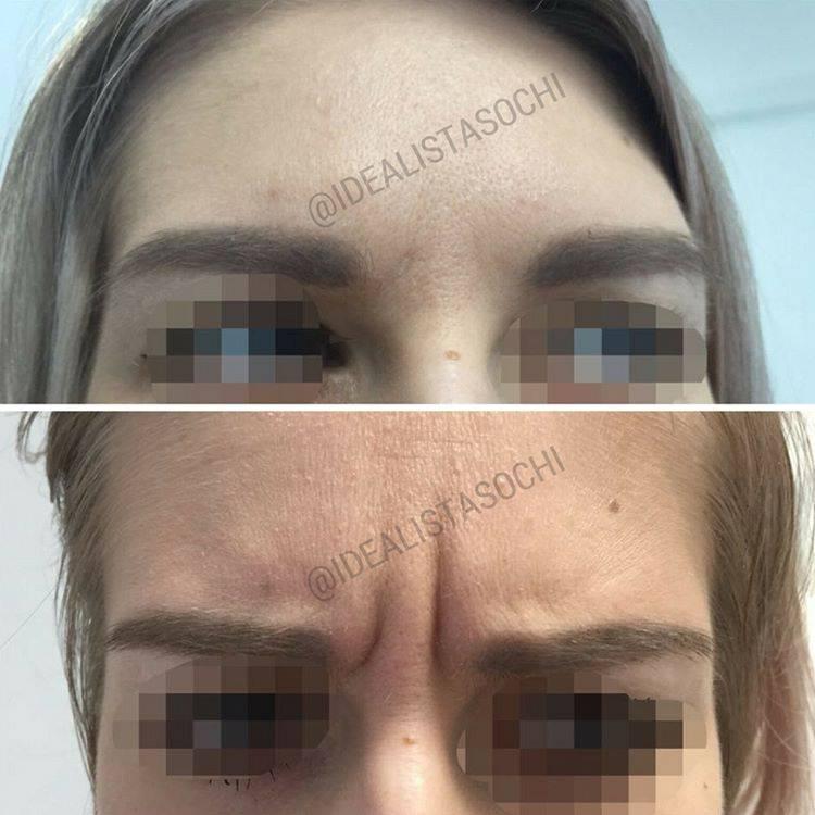 Фото до и после укола ботокса - 3