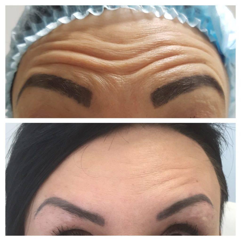 Фото до и после укола ботокса