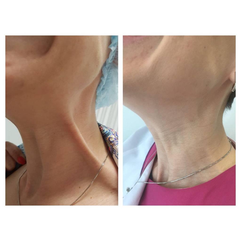 Фото до и после ботулинотерапии - 3
