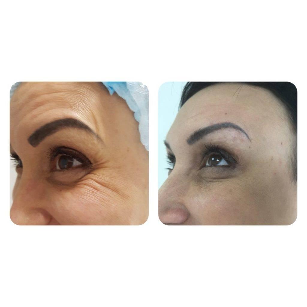 Фото до и после укола ботокса - 2
