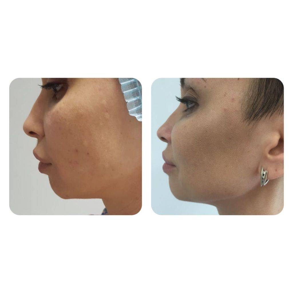 Фото до и после ботулинотерапии - 2