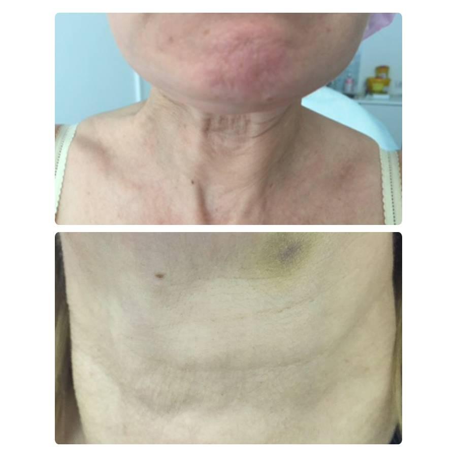 Фото до и после ботулинотерапии - 4