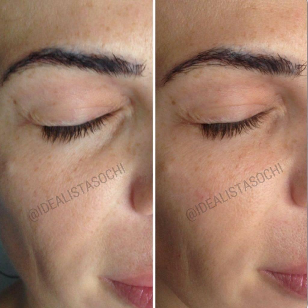 Фото до и после контурной пластики лица - 2
