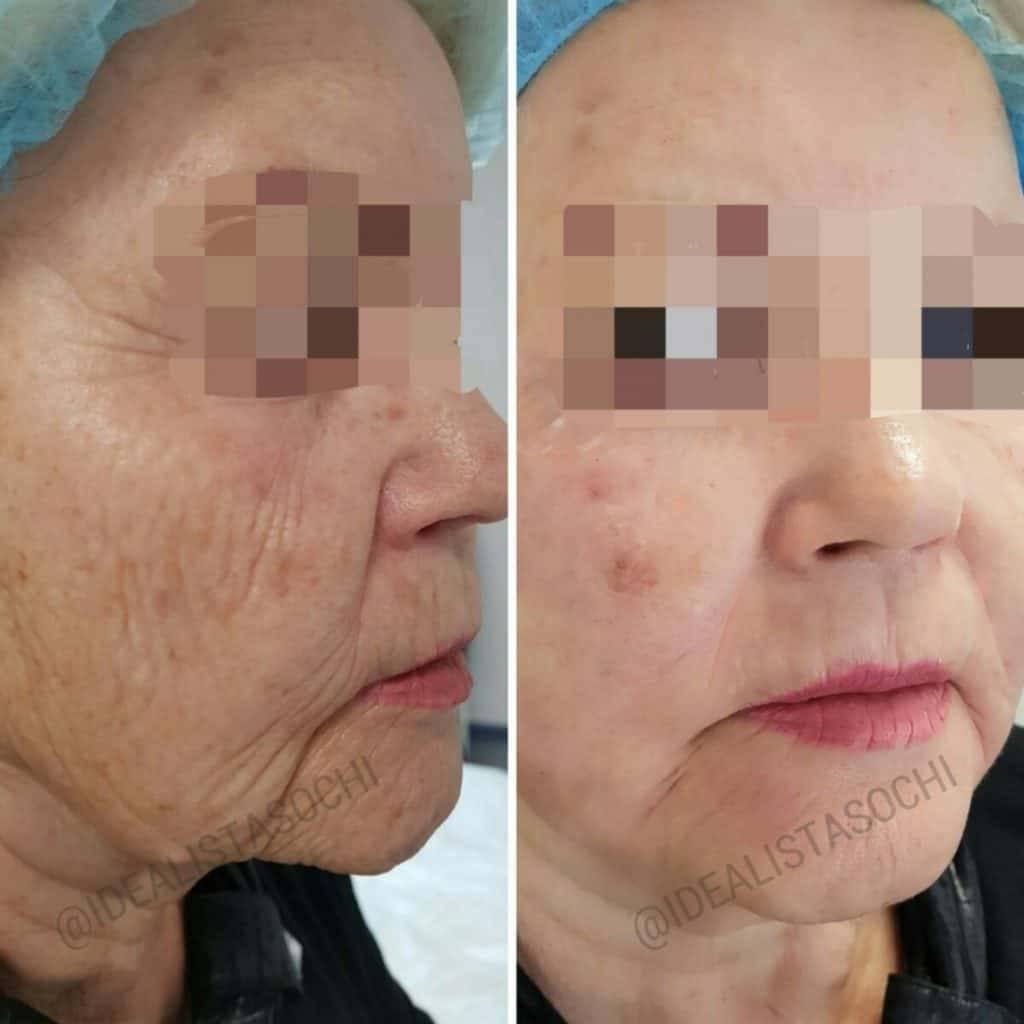 Фото до и после процедуры лазерной шлифовки лица