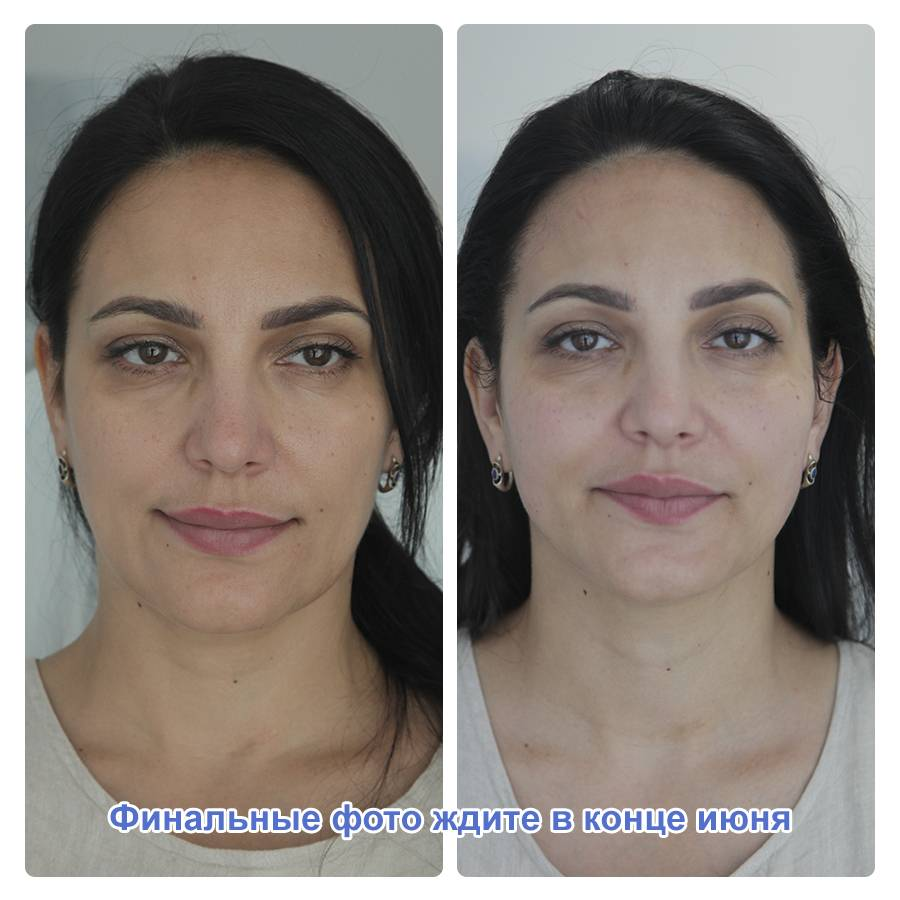 Фото процедуры уколов красоты препаратом Radiesse
