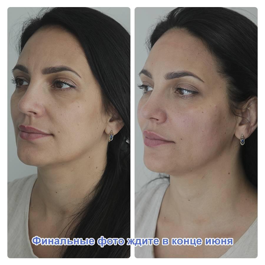 Фото процедуры уколов красоты препаратом Radiesse - 2