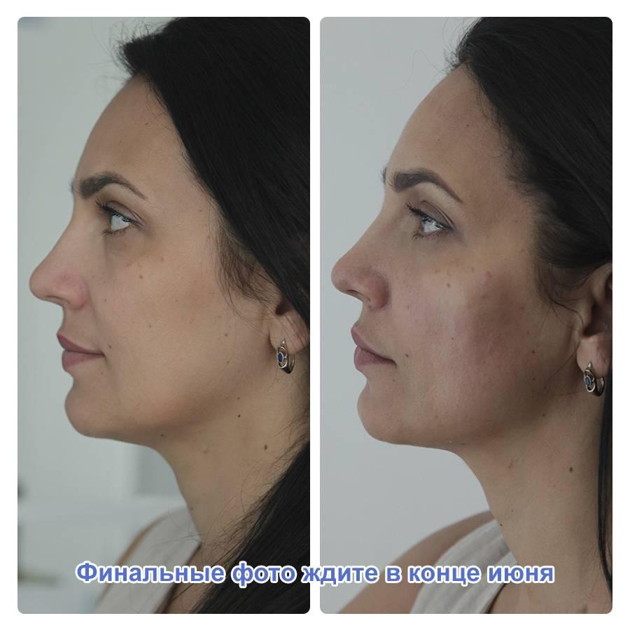 Фото процедуры уколов красоты препаратом Radiesse - 3