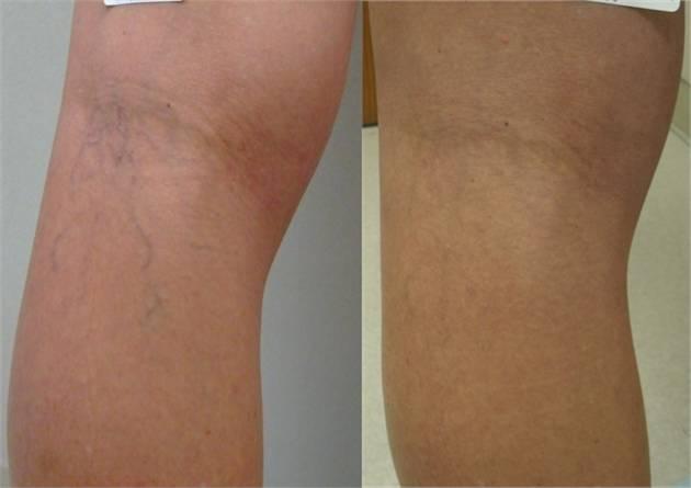 Фото до и после лечения купероза - 2