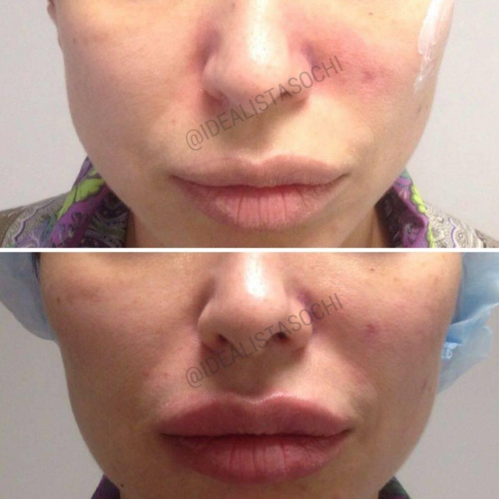 Фото до и после контурной пластики лица - 3