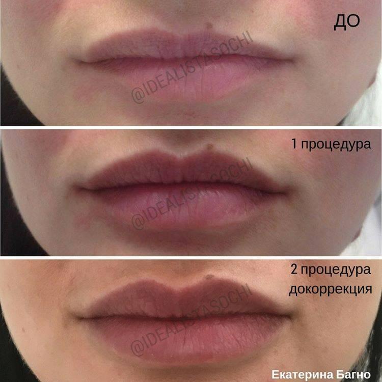 Фото до и после контурной пластики лица - 4
