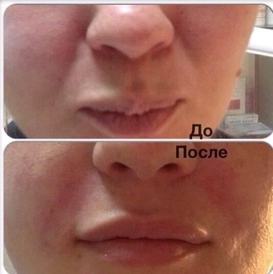 Фото до и после процедуры контурной пластики носогубных складок