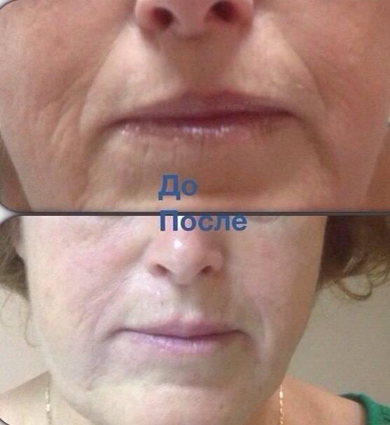 Фото до и после процедуры контурной пластики носогубных складок - 2