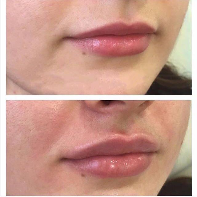 Фото до и после увеличения губ - 3