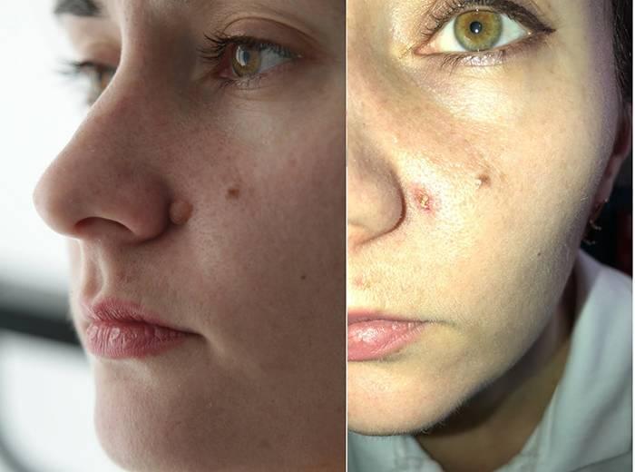 Фото до и после удаления новообразований на лице