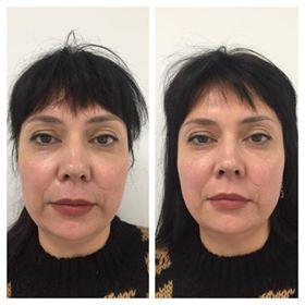 Фото до и после процедуры глубокого термолифтинга лица - 3