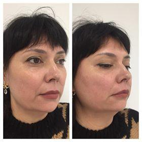 Фото до и после процедуры глубокого термолифтинга лица - 4