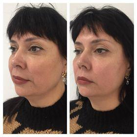 Фото до и после процедуры глубокого термолифтинга лица - 5