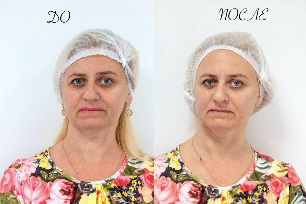 Фото до и после процедуры глубокого термолифтинга лица