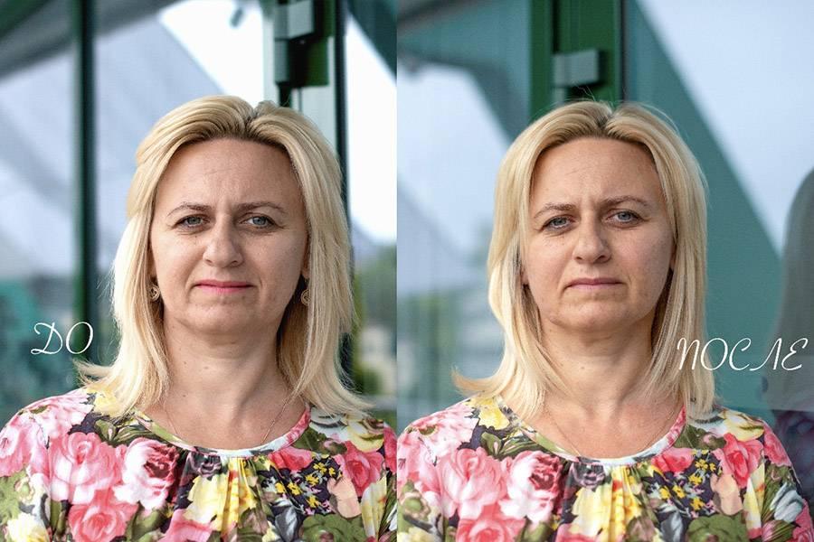 Фото до и после процедуры глубокого термолифтинга лица - 2