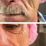 Фото до и после процедур сделанными врачом-косметологом - 4